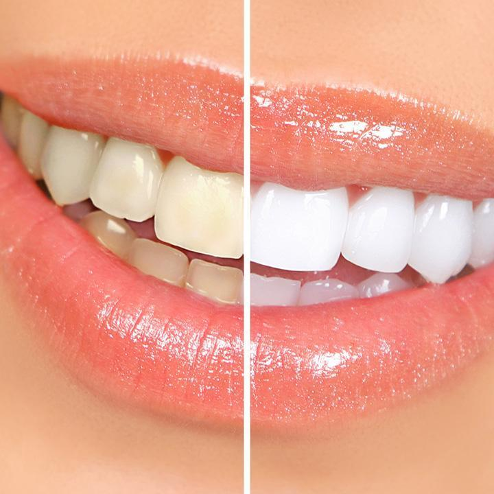 1fad95a3a353e Le blanchiment dentaire permet d éclaircir la teinte des dents et donner  plus d éclat à votre sourire. Il faut différencier le blanchiment externe  du ...
