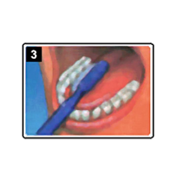 dentiste-chablais-article-hygiene-detartrage-brossage-03