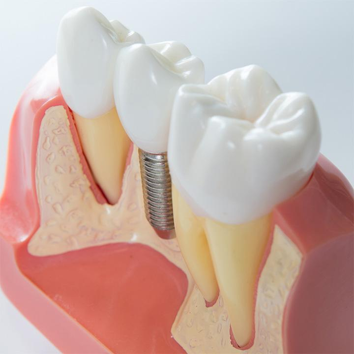 dentiste-chablais-article-implant-dentaire-04