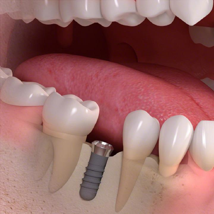 dentiste-chablais-article-implant-dentaire-03