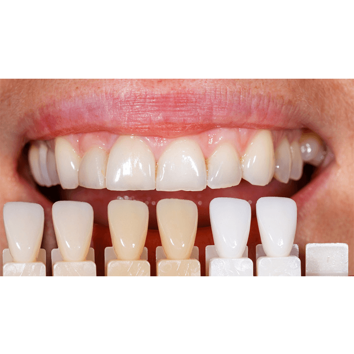 dentiste-chablais-article-implant-dentaire-06