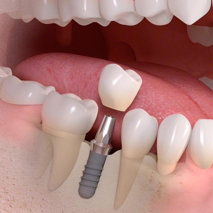 dentiste-chablais-article-implant-dentaire-07