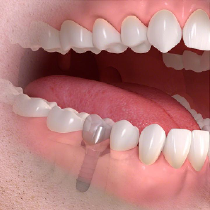 dentiste-chablais-article-implant-dentaire-08