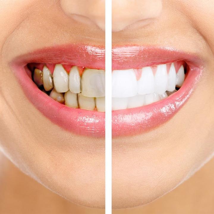 Proth ses dentaires centre dentaire de la tour - Grille des salaires des assistantes dentaires ...